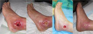 Ayurvedic Treatment for Diabetic Foot