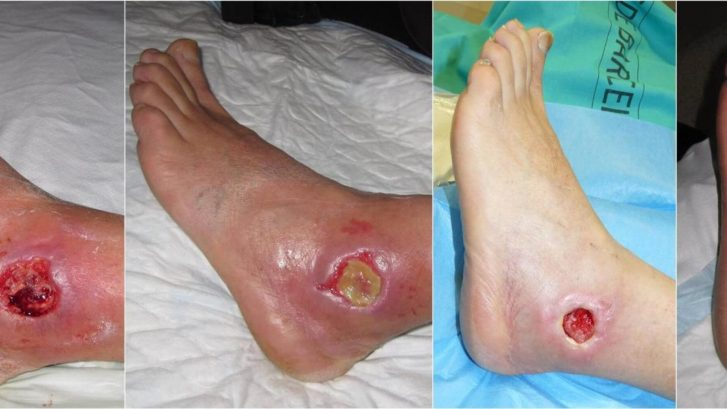 Ayurvedic Treatment for Diabetic Foot