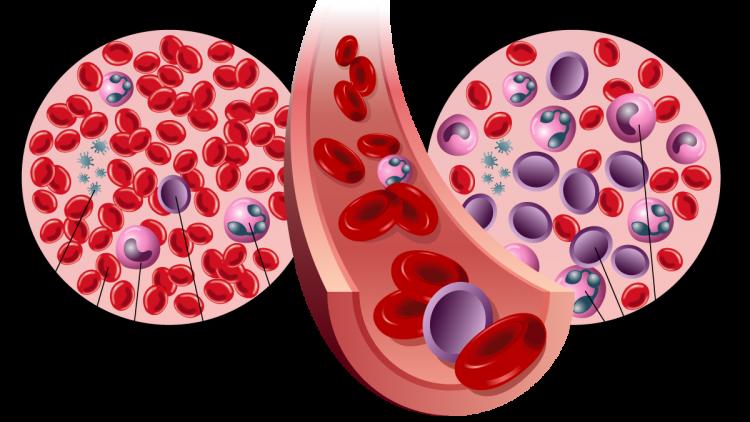 Ayurvedic Treatment for Acute Lymphocytic Leukemia
