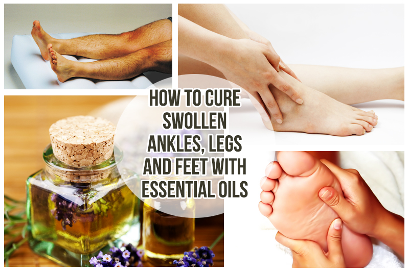 Ayurvedic treatment for swelling on feet
