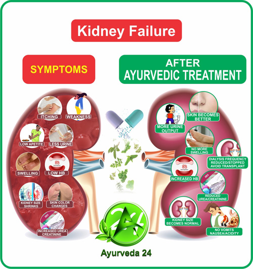 Ayurvedic Treatment For Kidney Failure | Kidney Failure