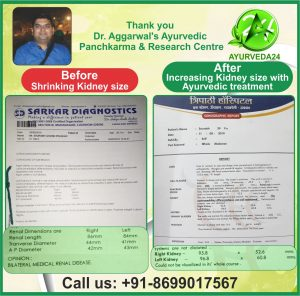 ayurvedic-treatment-kidney-failure